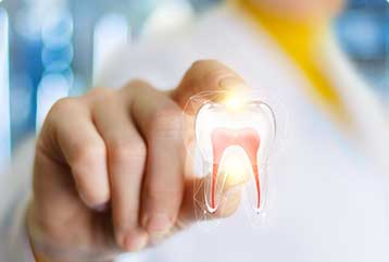Dental Services - root canal treatment